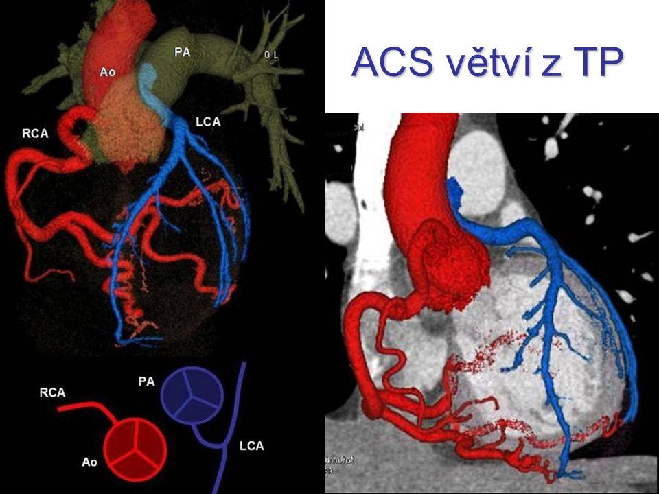 ACS větví z TP