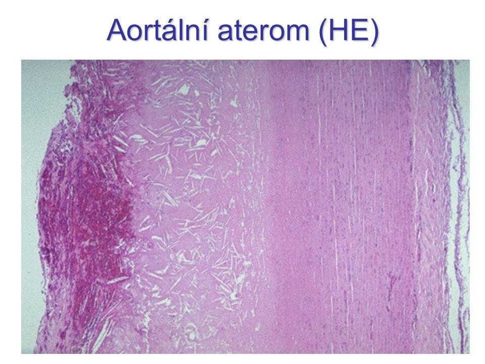 Aortální aterom (HE)