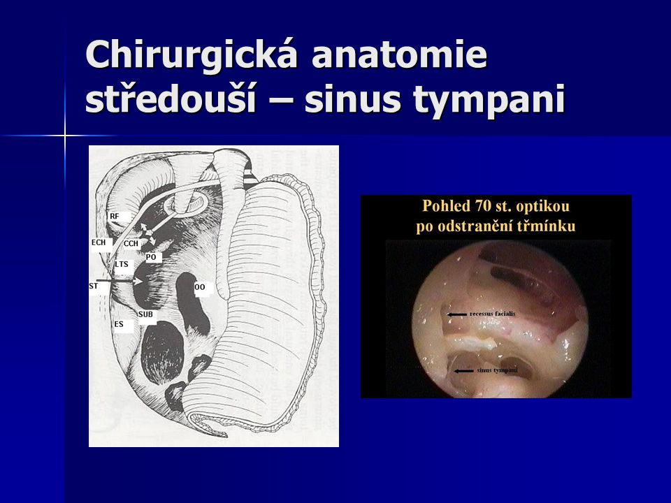 Chirurgická anatomie středouší – sinus tympani