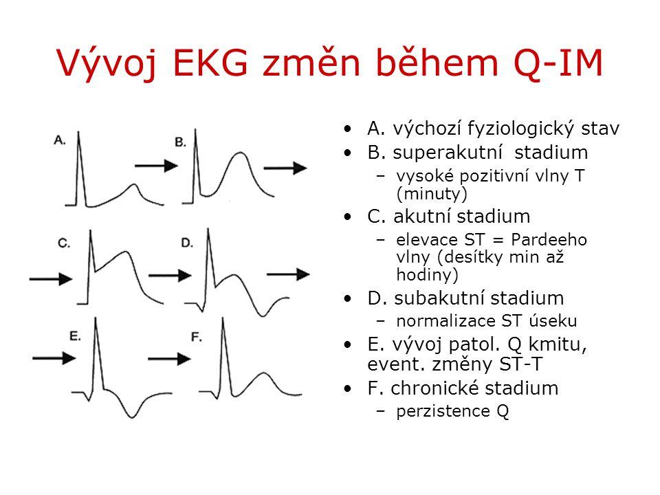 Vývoj EKG změn během Q-IM