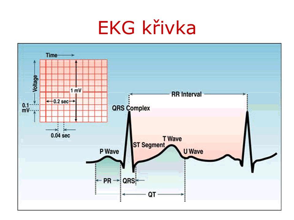 EKG křivka