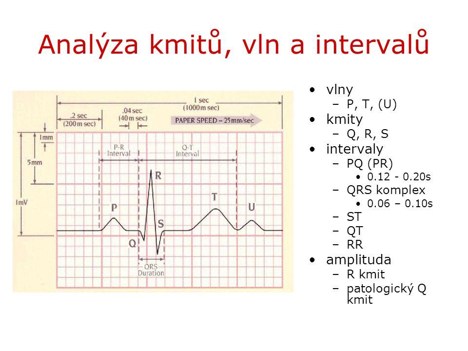 Analýza kmitů, vln a intervalů