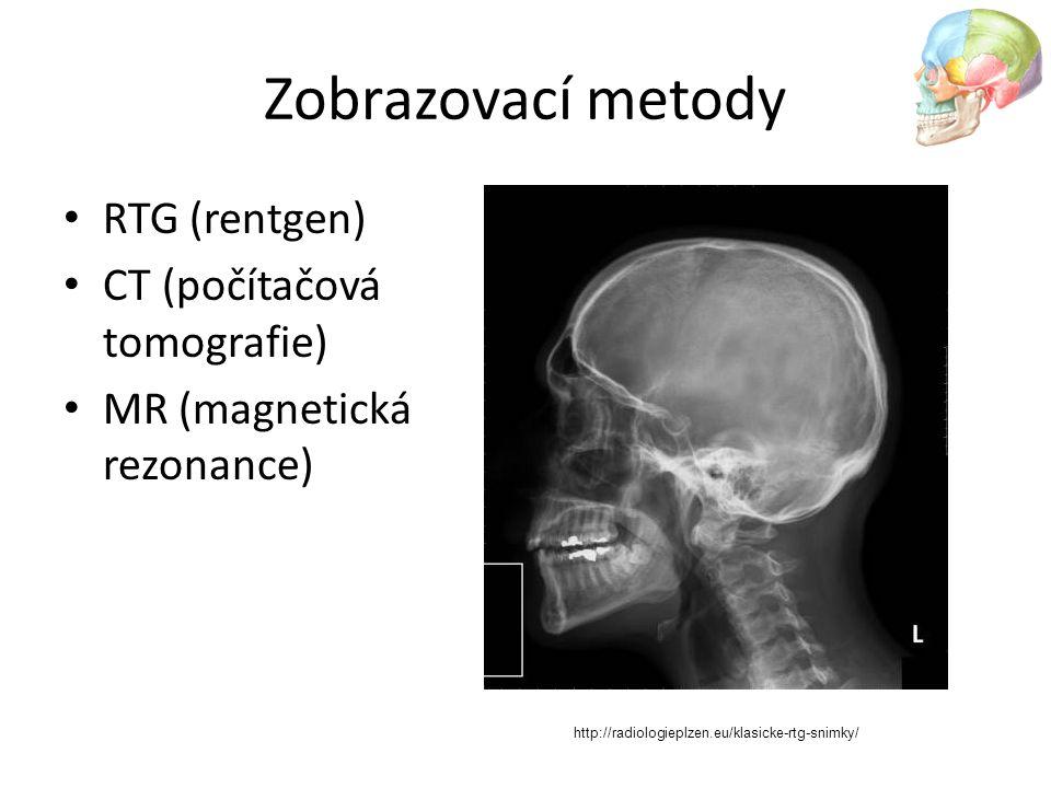 Zobrazovací metody RTG (rentgen) CT (počítačová tomografie)