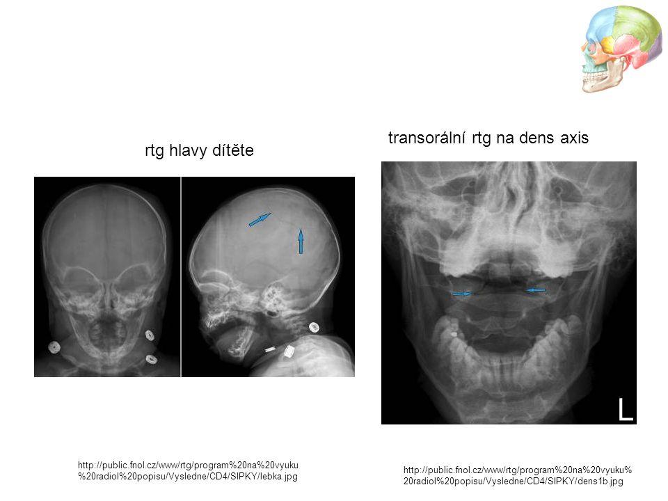 transorální rtg na dens axis rtg hlavy dítěte