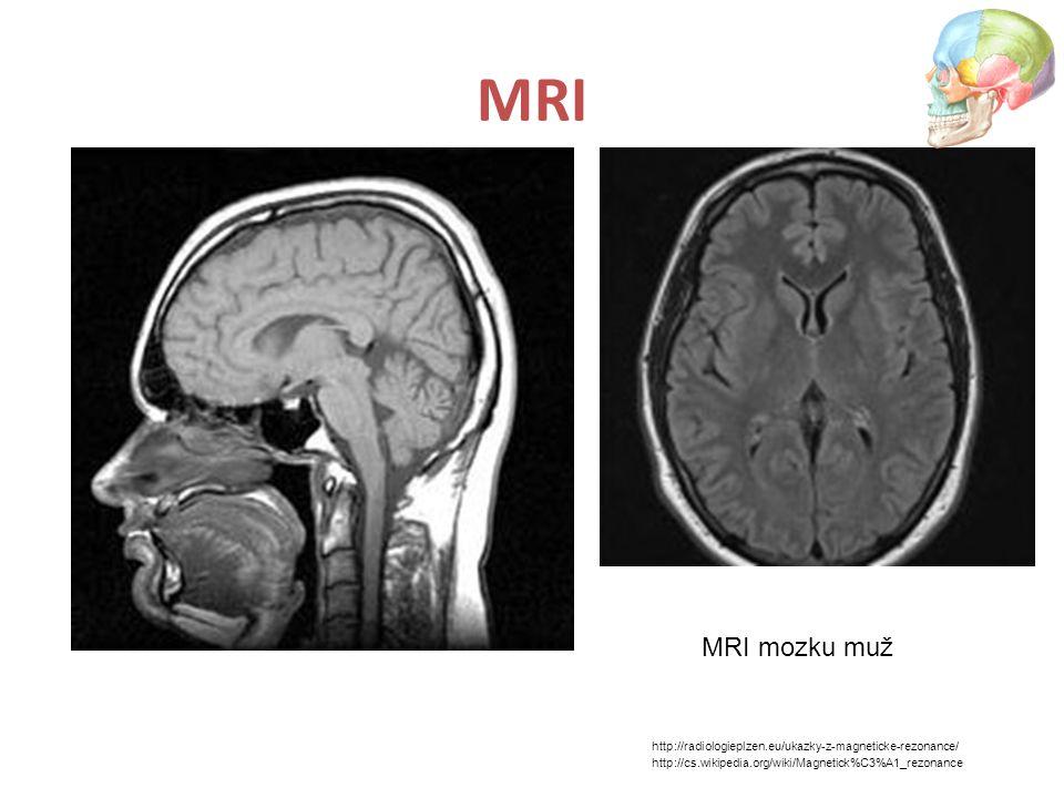 MRI MRI mozku muž.