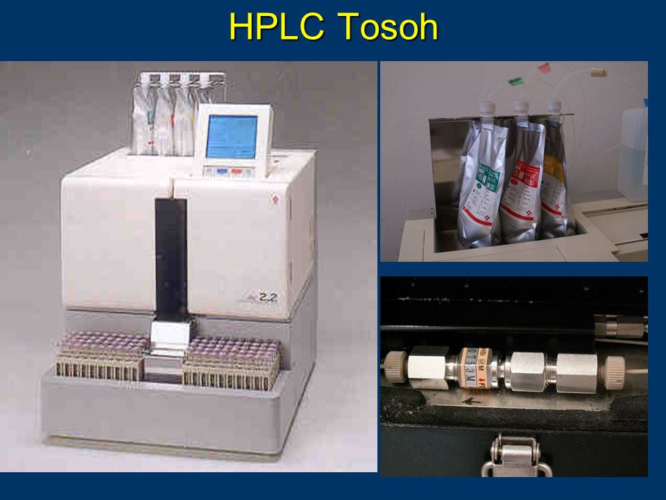 HPLC Tosoh