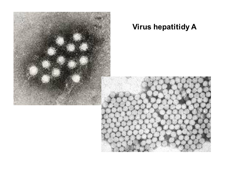 Virus hepatitidy A