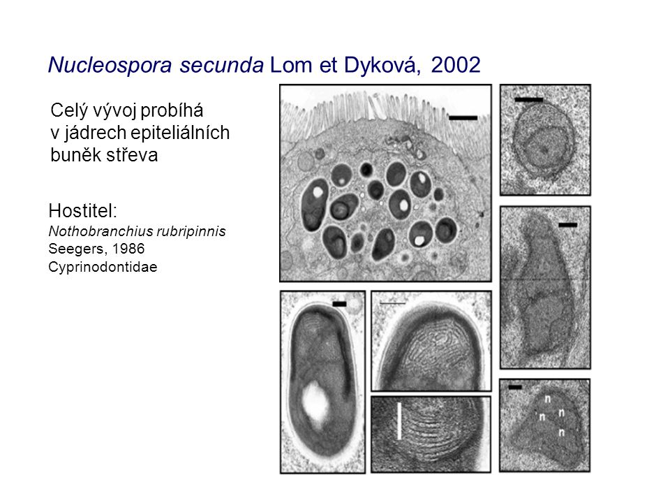 Nucleospora secunda Lom et Dyková, 2002