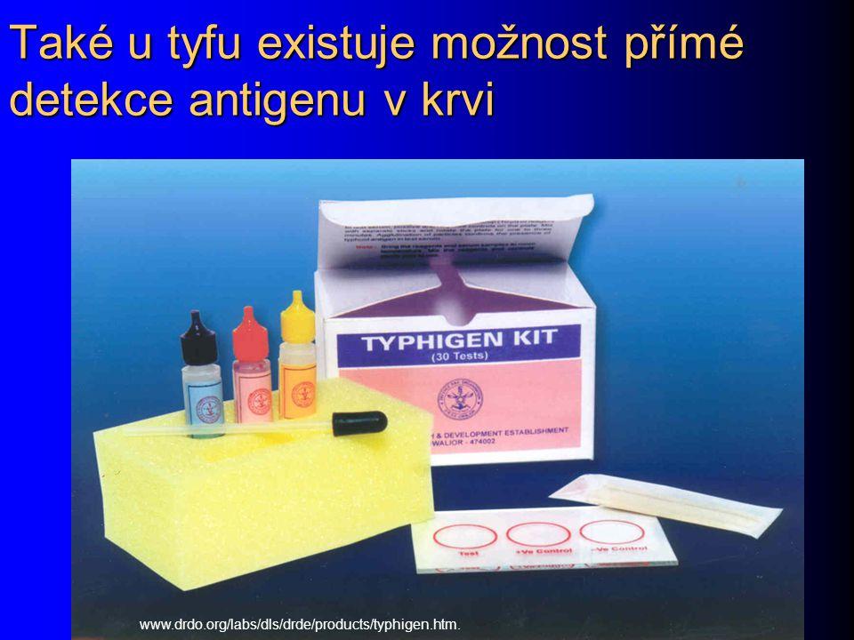Také u tyfu existuje možnost přímé detekce antigenu v krvi