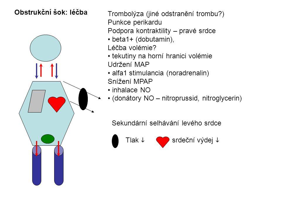 Obstrukční šok: léčba Trombolýza (jiné odstranění trombu ) Punkce perikardu. Podpora kontraktility – pravé srdce.