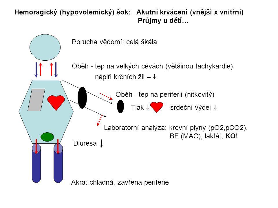 Hemoragický (hypovolemický) šok: Akutní krvácení (vnější x vnitřní)