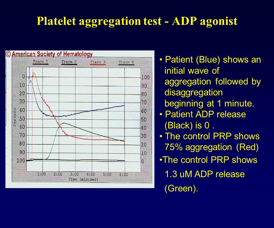 Platelet aggregation test - ADP agonist