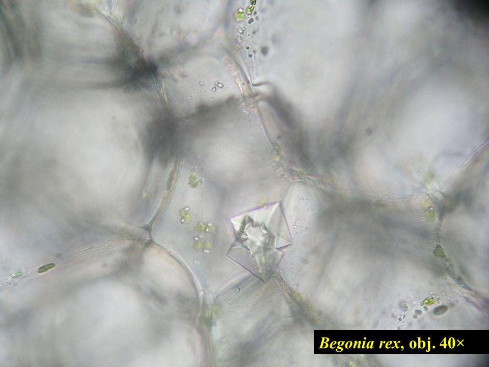 Begonia rex, obj. 40× 14
