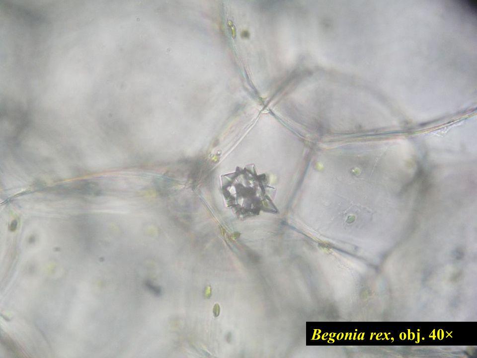 Begonia rex, obj. 40× 15