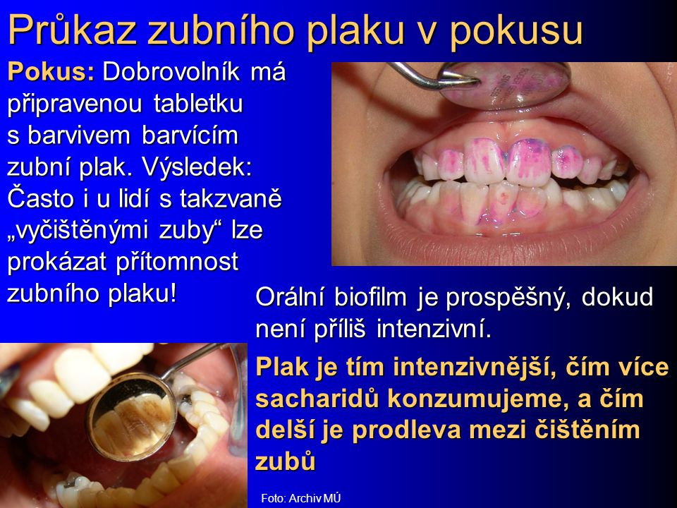Průkaz zubního plaku v pokusu