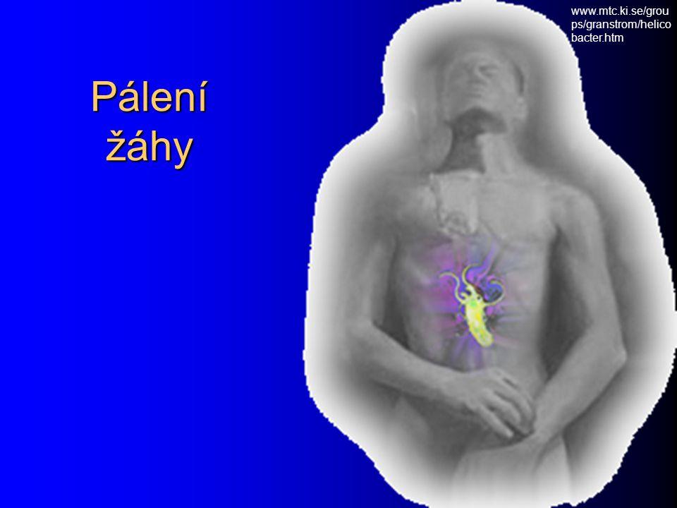 www.mtc.ki.se/groups/granstrom/helicobacter.htm Pálení žáhy