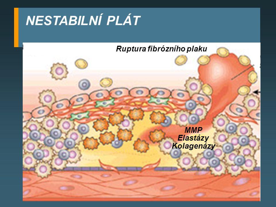 Ruptura fibrózního plaku