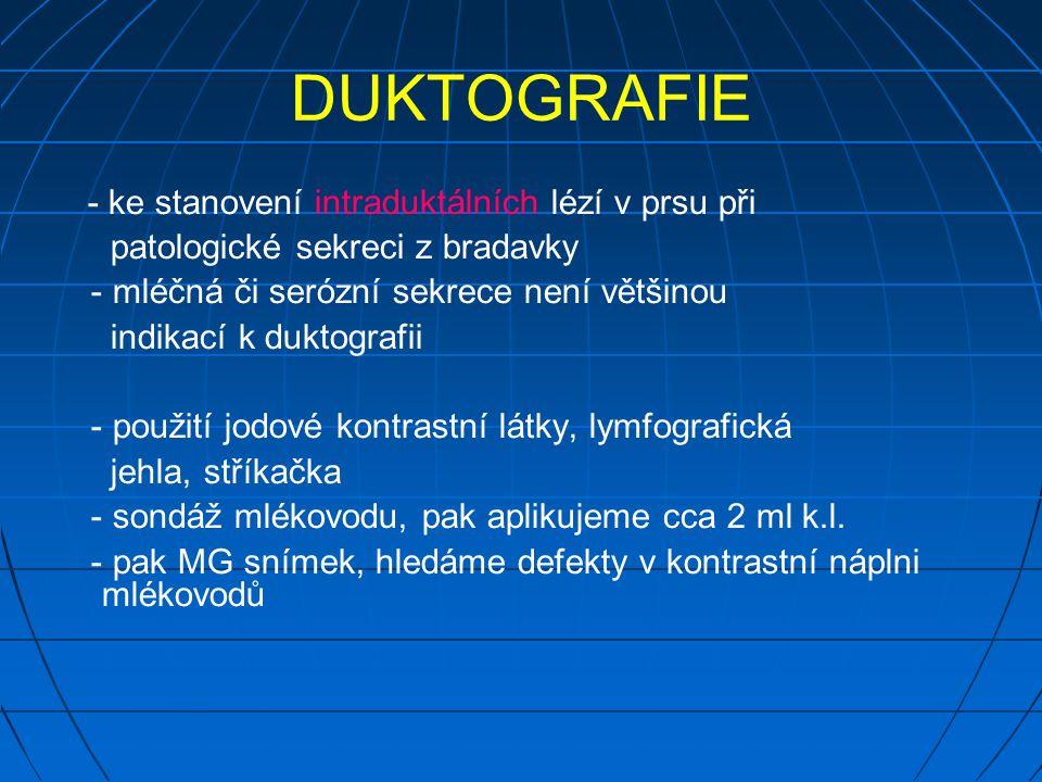 DUKTOGRAFIE - ke stanovení intraduktálních lézí v prsu při