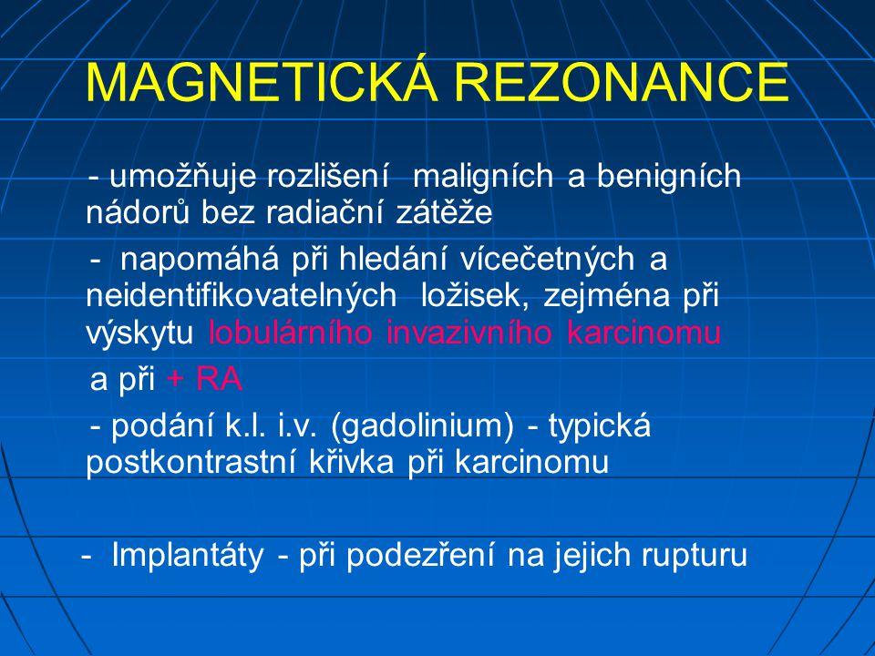 MAGNETICKÁ REZONANCE - umožňuje rozlišení maligních a benigních nádorů bez radiační zátěže.