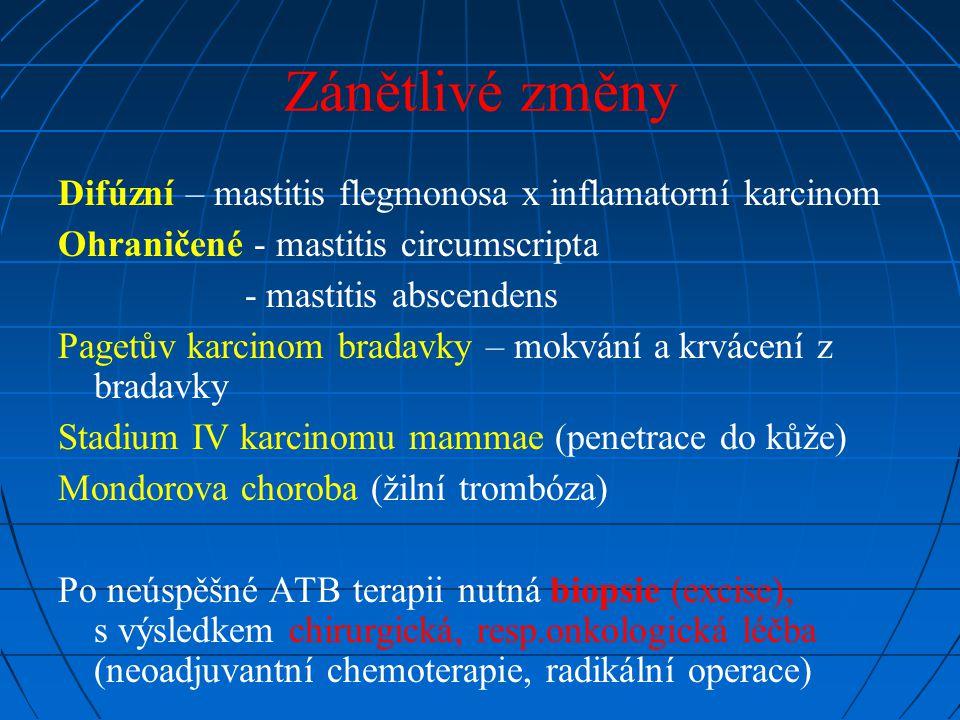 Zánětlivé změny Difúzní – mastitis flegmonosa x inflamatorní karcinom