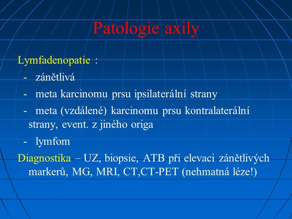 Patologie axily Lymfadenopatie : - zánětlivá