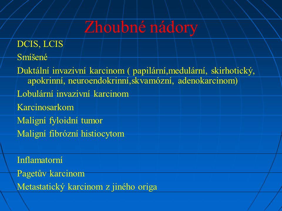 Zhoubné nádory DCIS, LCIS Smíšené