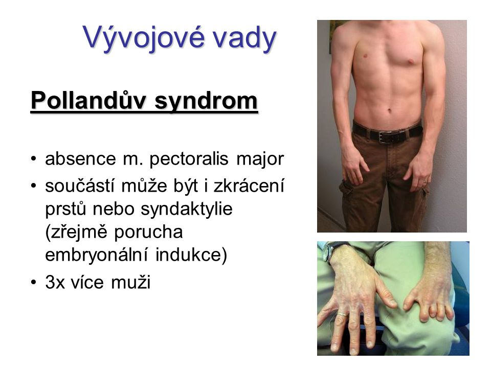 Vývojové vady Pollandův syndrom absence m. pectoralis major