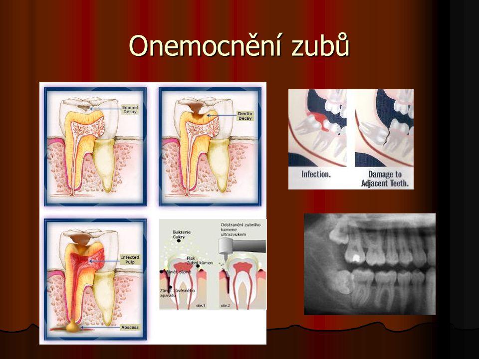 Onemocnění zubů
