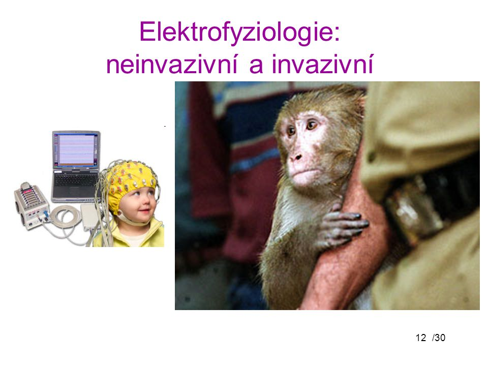 Elektrofyziologie: neinvazivní a invazivní