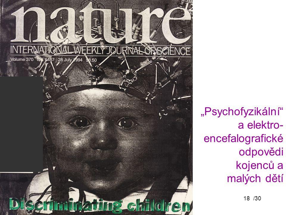 """""""Psychofyzikální a elektro- encefalografické odpovědi kojenců a malých dětí"""
