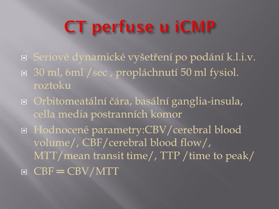 CT perfuse u iCMP Seriové dynamické vyšetření po podání k.l.i.v.