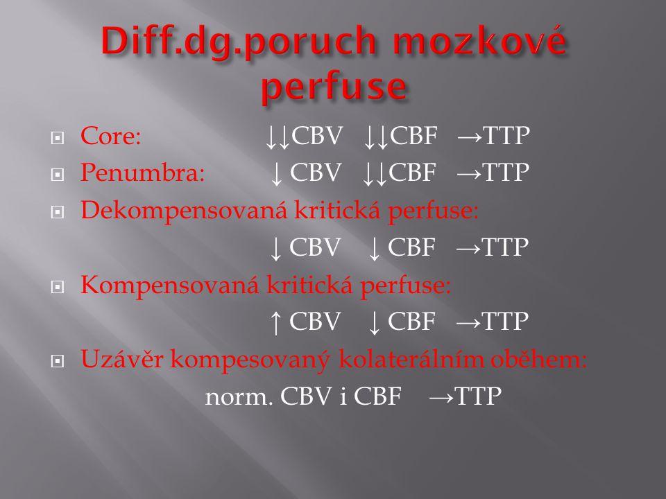 Diff.dg.poruch mozkové perfuse