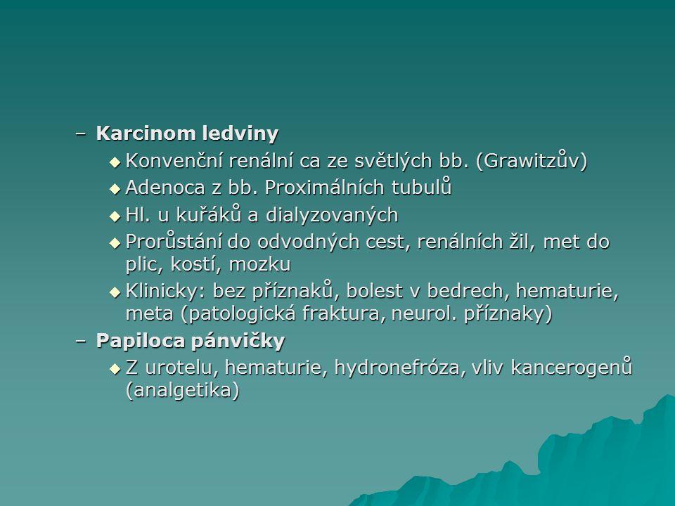 Karcinom ledviny Konvenční renální ca ze světlých bb. (Grawitzův) Adenoca z bb. Proximálních tubulů.