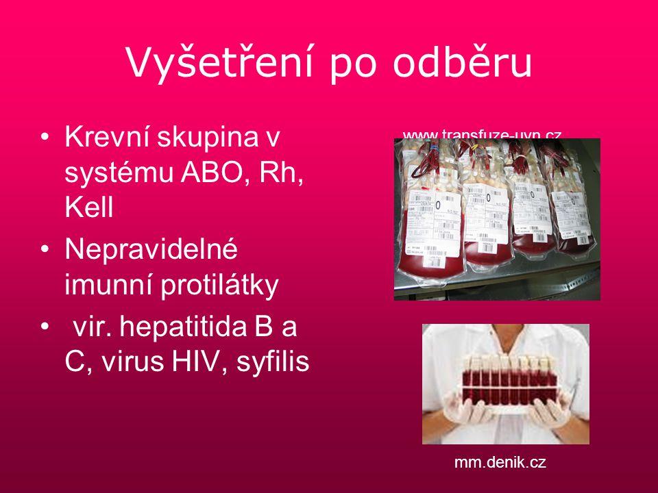 Vyšetření po odběru Krevní skupina v systému ABO, Rh, Kell