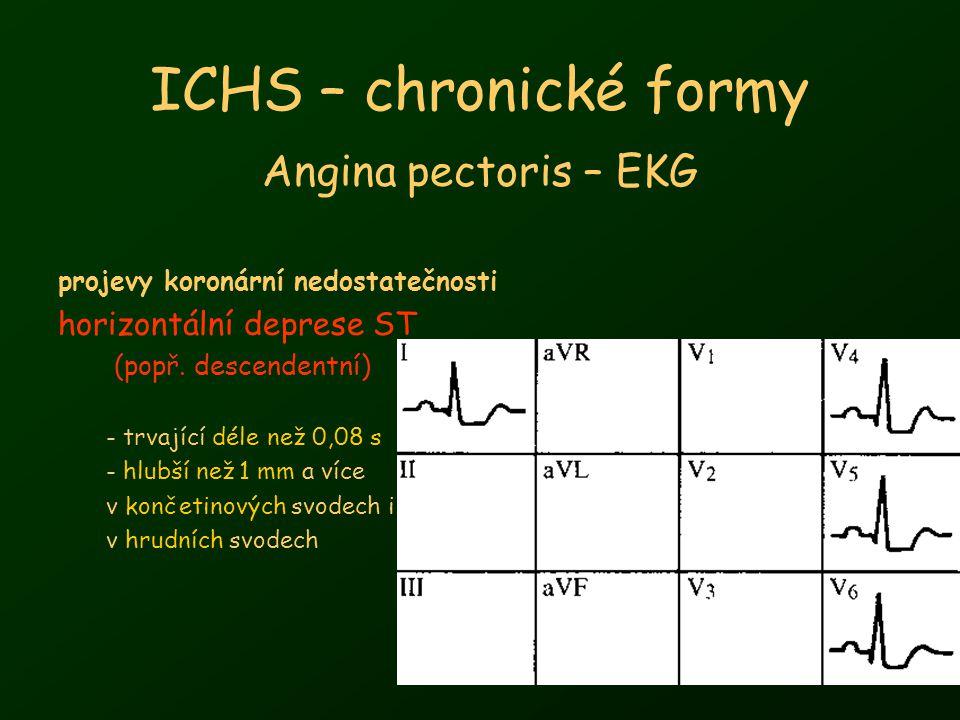 ICHS – chronické formy Angina pectoris – EKG horizontální deprese ST