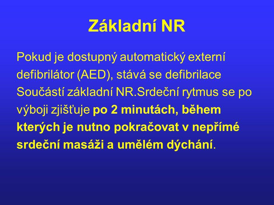 Základní NR Pokud je dostupný automatický externí