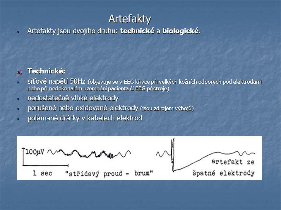 Artefakty Artefakty jsou dvojího druhu: technické a biologické.