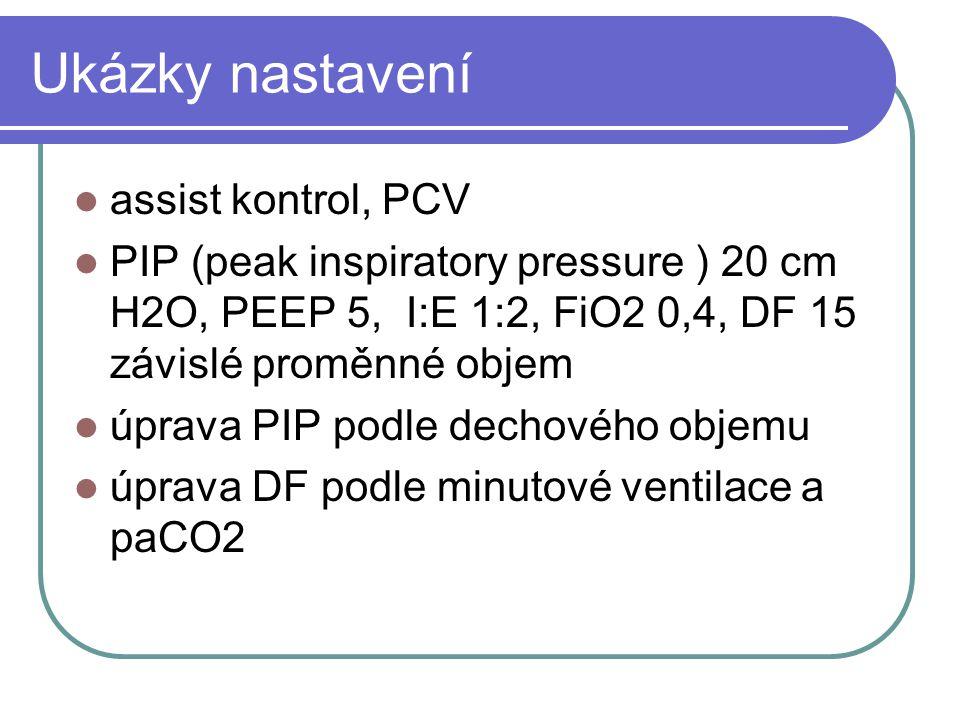 Ukázky nastavení assist kontrol, PCV