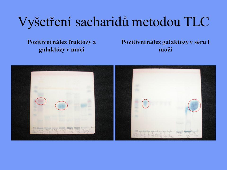 Vyšetření sacharidů metodou TLC