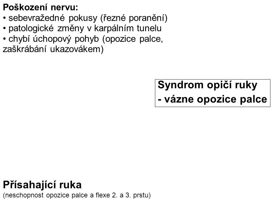 Syndrom opičí ruky - vázne opozice palce Přísahající ruka
