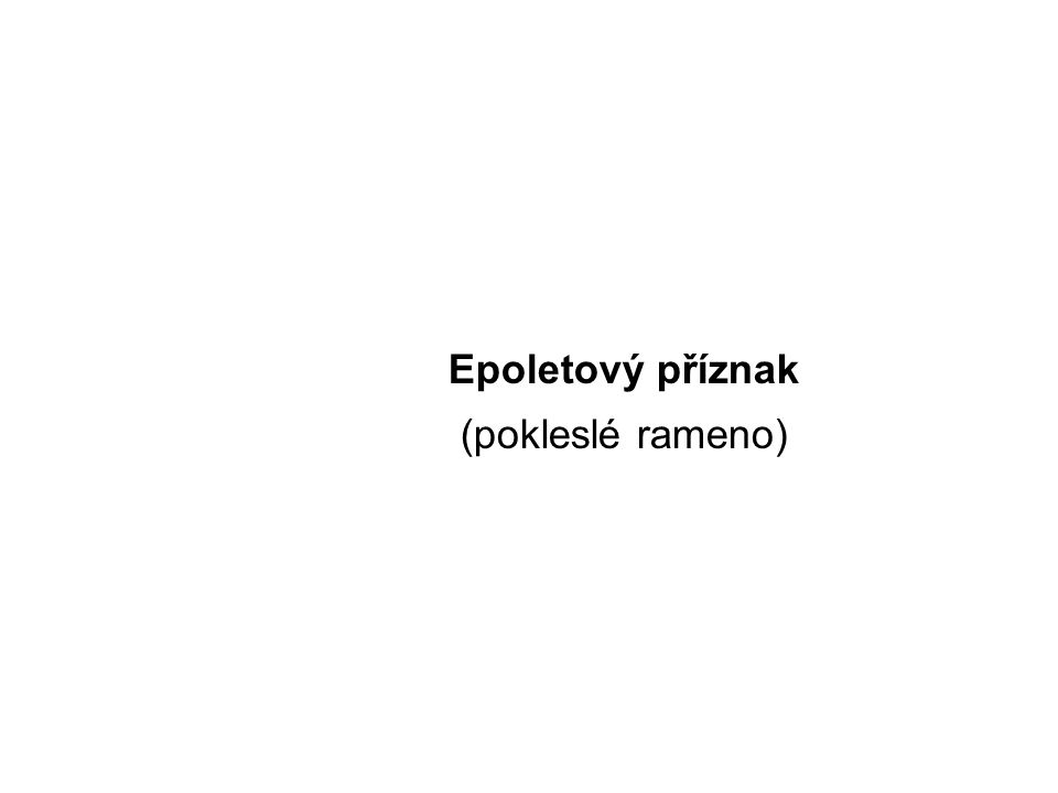 Epoletový příznak (pokleslé rameno) Epoletový příznak
