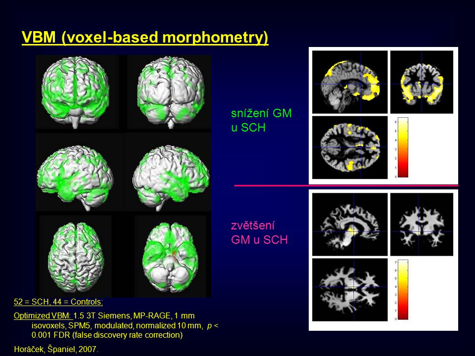 VBM (voxel-based morphometry)