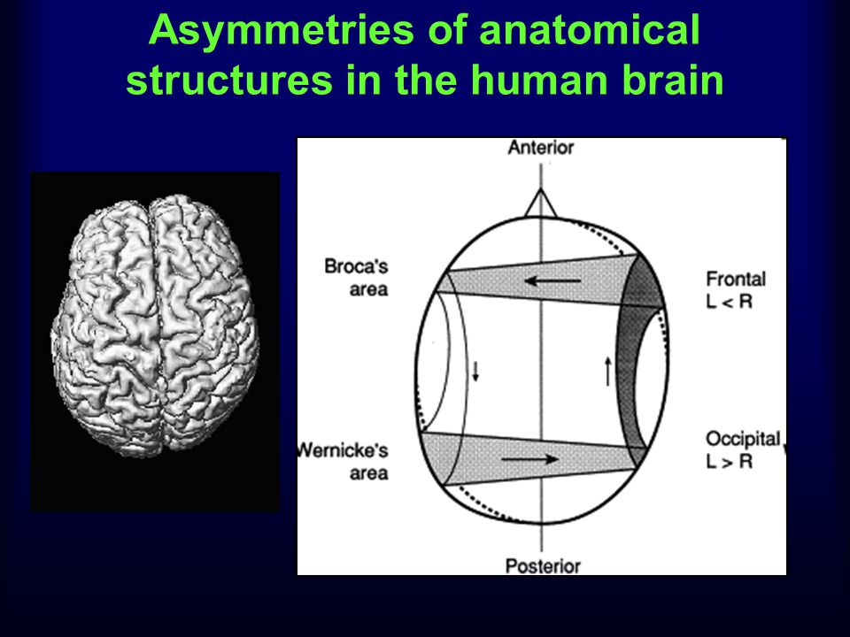Asymmetries of anatomical structures in the human brain