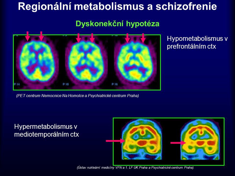 Regionální metabolismus a schizofrenie Dyskonekční hypotéza