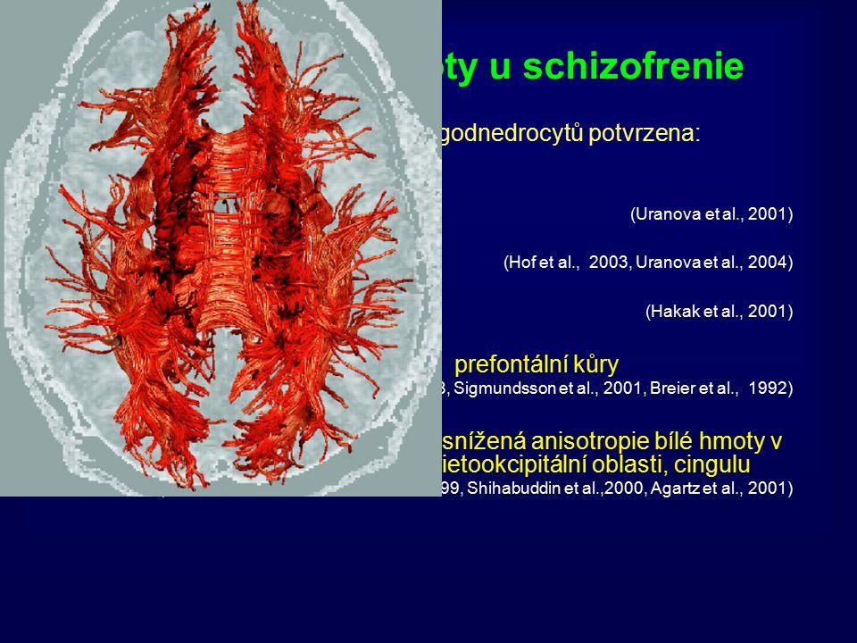 Patologie bílé hmoty u schizofrenie