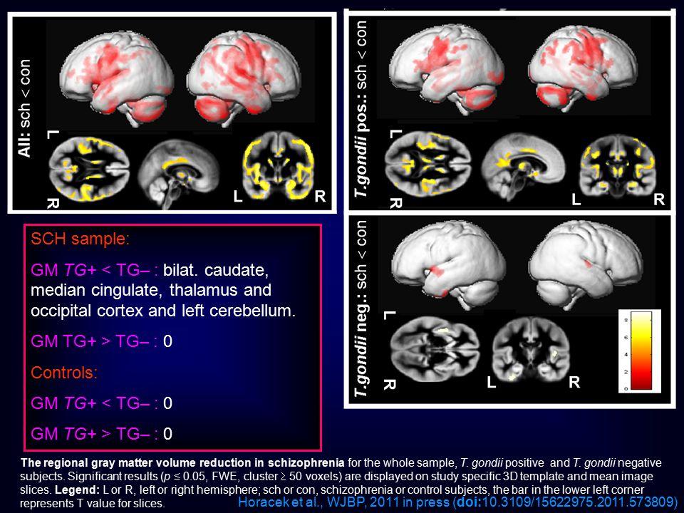 SCH sample: GM TG+ < TG– : bilat. caudate, median cingulate, thalamus and occipital cortex and left cerebellum.