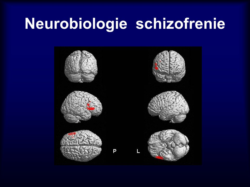 Neurobiologie schizofrenie