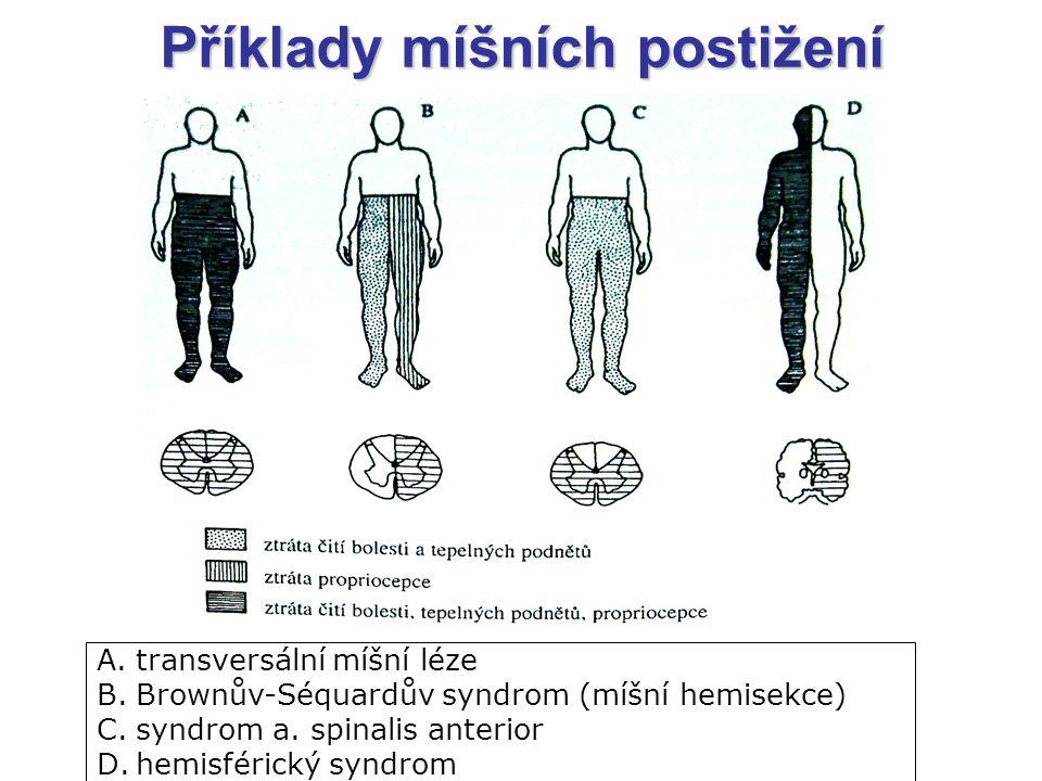 Příklady míšních postižení