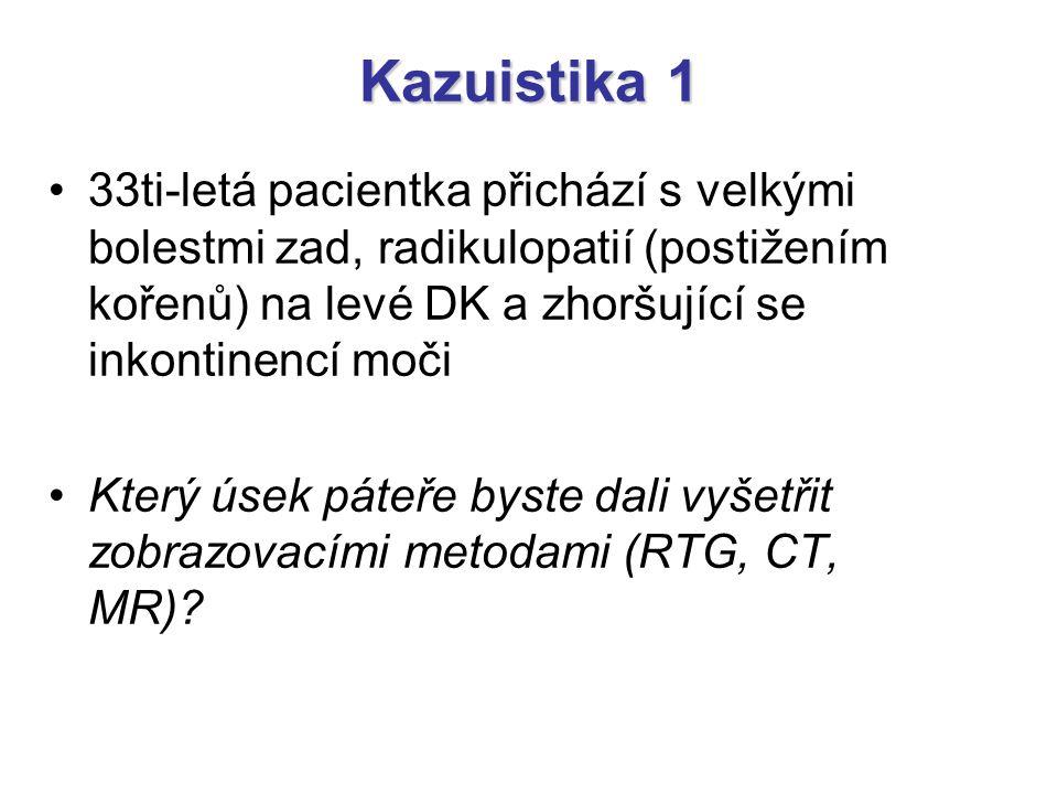 Kazuistika 1 33ti-letá pacientka přichází s velkými bolestmi zad, radikulopatií (postižením kořenů) na levé DK a zhoršující se inkontinencí moči.