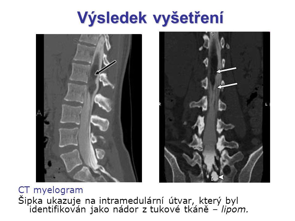 Výsledek vyšetření CT myelogram